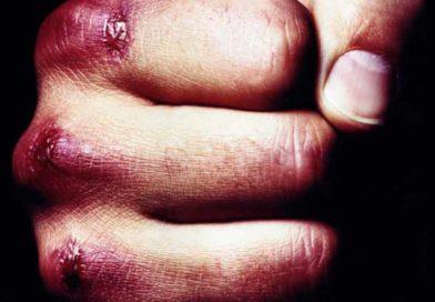 Подросток в Гусаке нанёс тяжкие телесные повреждения мужчине (Малоритский район)